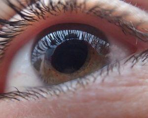 Glaukomanfall